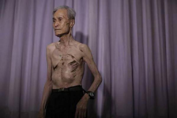 Он показал шрамы, оставшиеся после жуткой трагедии 70-летней давности... У меня отняло дар речи!