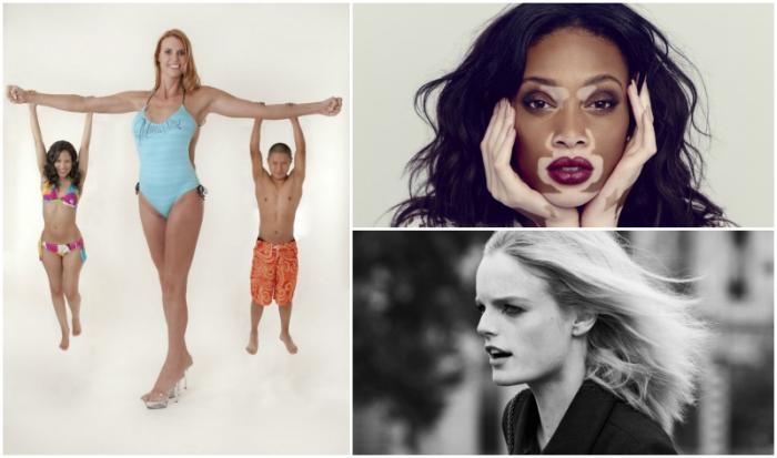 8 женщин, чьи дефекты не помешали им стать фотомоделями