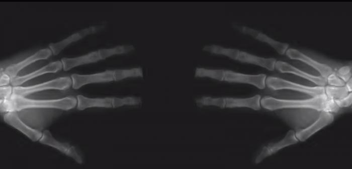 Вот что происходит на самом деле, когда ты хрустишь пальцами