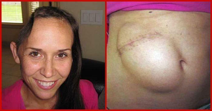 Женщина несколько месяцев прожила с черепом в животе