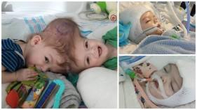 В США успешно прошла операция по разделению близнецов-краниопагов(12 фото)