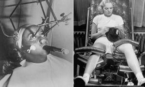 14 фотографий аппаратов для различных косметических процедур, глядя на которые сложно поверить, что это не пыточные устройства